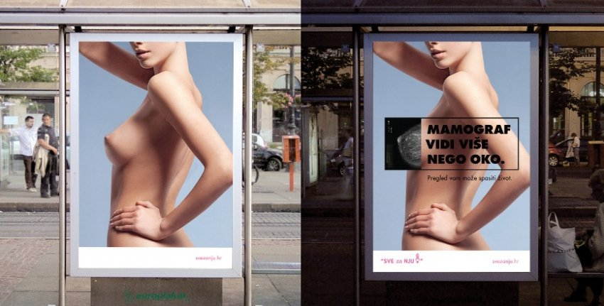 """Kampanja protiv raka dojke i odlaska na mamografiju za udrugu """"Sve za NJU"""""""