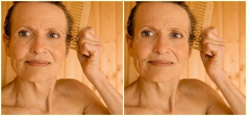 5 razloga zašto gubite kosu prerano