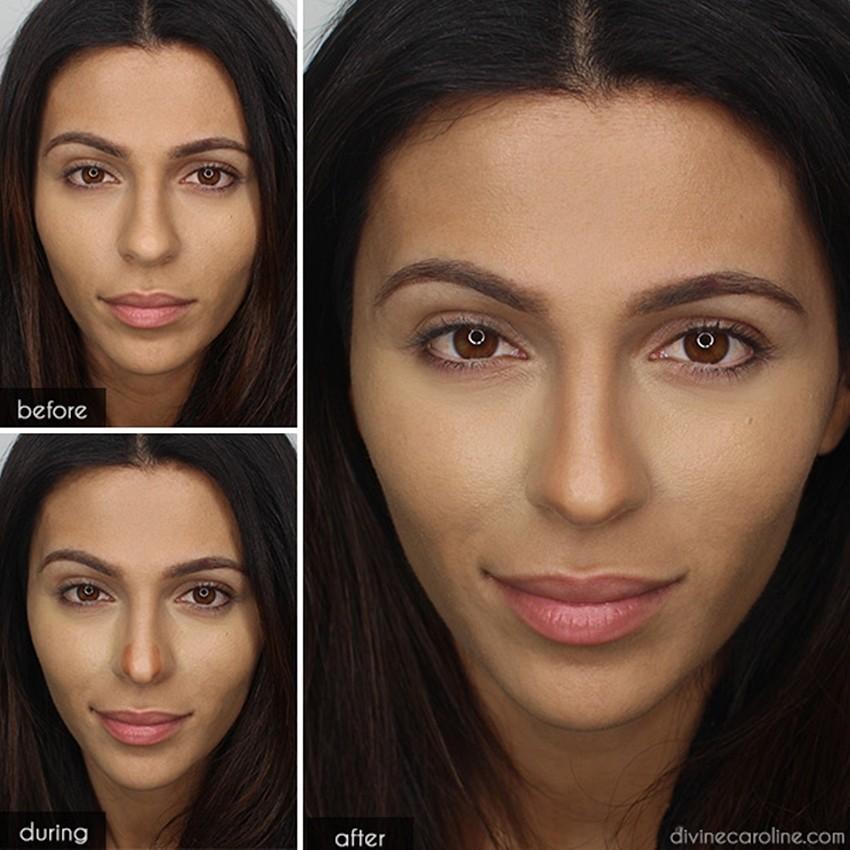 Smanjite nos bez estetske operacije