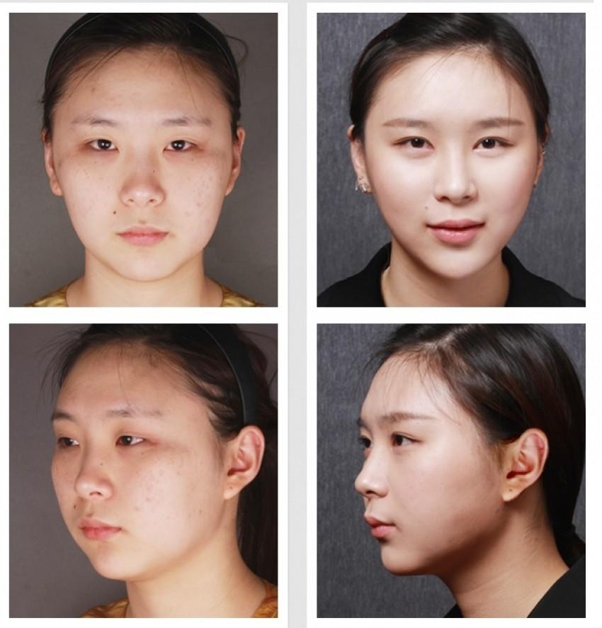 Operacija okruglih obraza