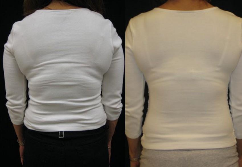 Liposukcija leđa