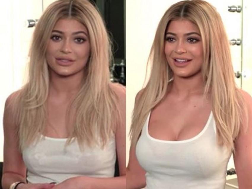 Kylie Jenner operirala grudi?